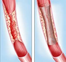 Pakistan Manufacturing Cheaper Local Stents