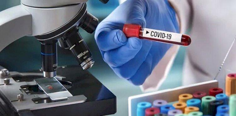 Pakistani-Russian Scientist Develops Corona virus Treatment That Cures in 10 days